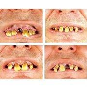 Dentier avec dents abîmées